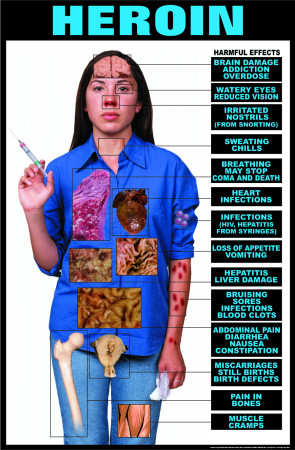Harmful Effects of Heroin Laminated Poster