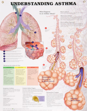 "Understanding Asthma Chart, Laminated 20"" x 26"""
